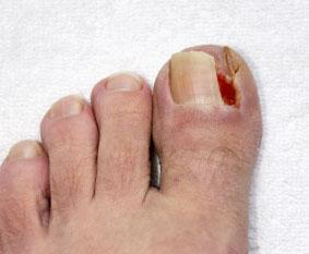 An Ingrown Toenail Is A That Grows Sideways Into The Nail Bed Causing Pain And Swelling Toenails Can Worsen Cause Drainage